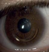 _wsb_162x175_anillo+intraestromal