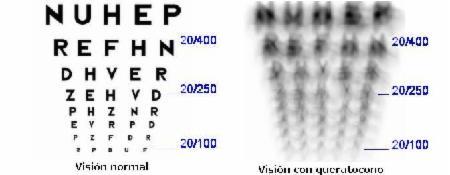_wsb_450x172_queratocono+vision