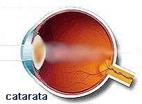 ojo_catarata_opticas_guadalajara